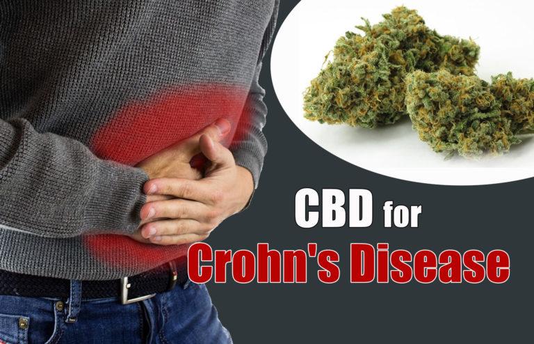 CBD for Crohn's Disease