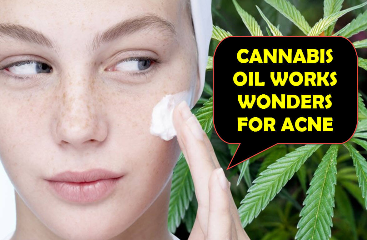Suffering from Acne? CBD might help