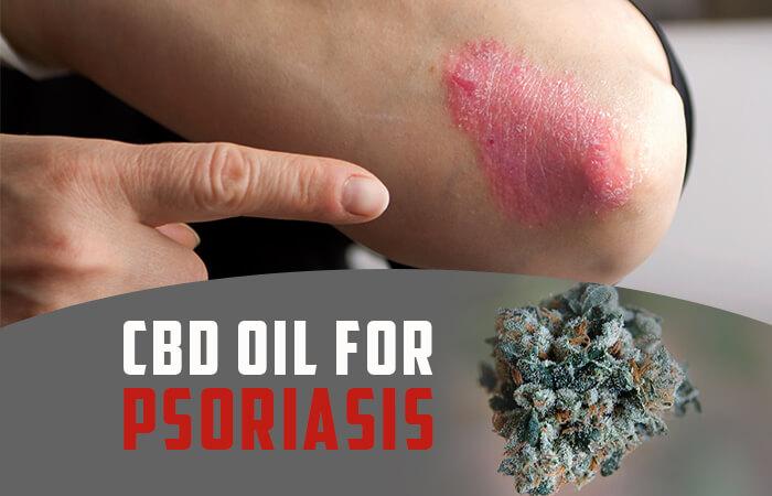 CBD for Psoriasis